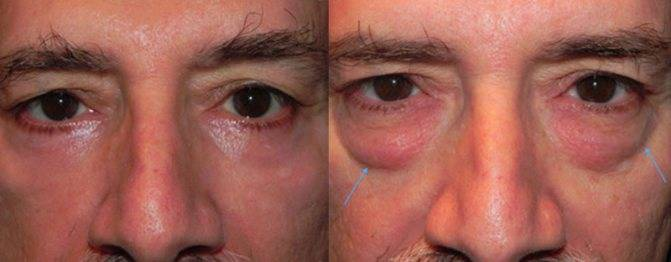 Мешки под глазами: почему они появляются