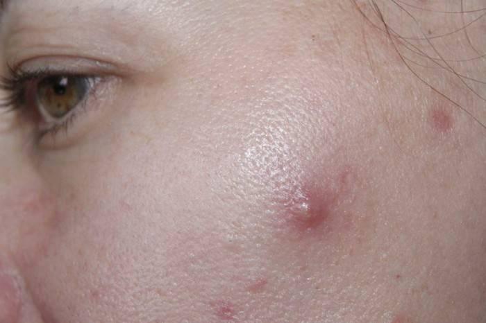 Как убрать воспаления и прыщи на лице: быстрые и эффективные методы