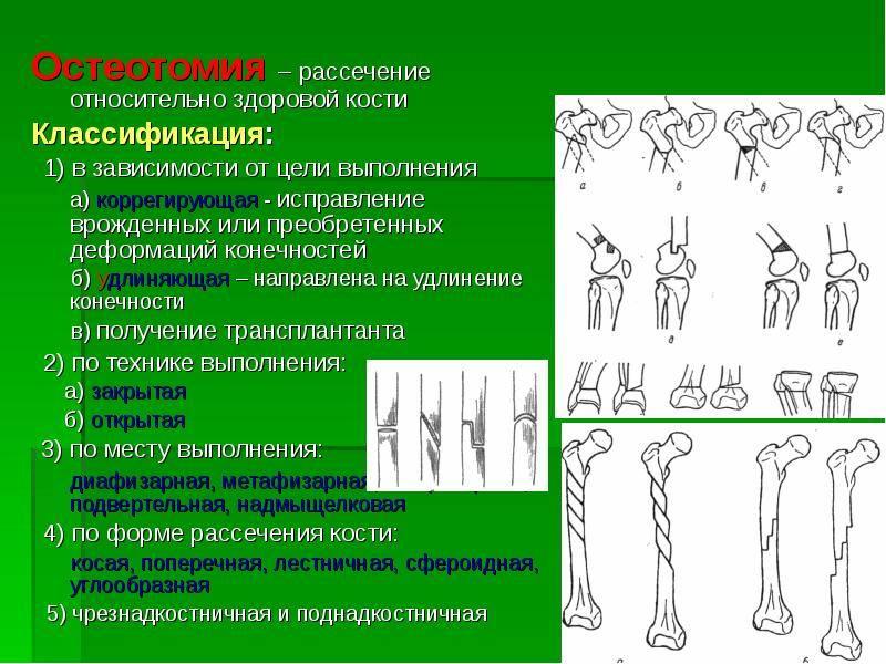 Ментопластика: показания и эффективность, методы, проведение, результат и восстановление после