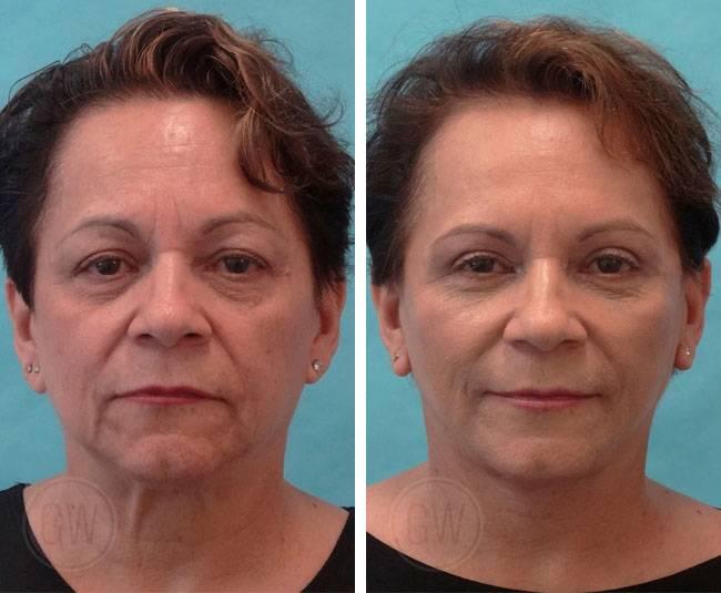 Новая и результативная процедура smas-лифтинг для лица