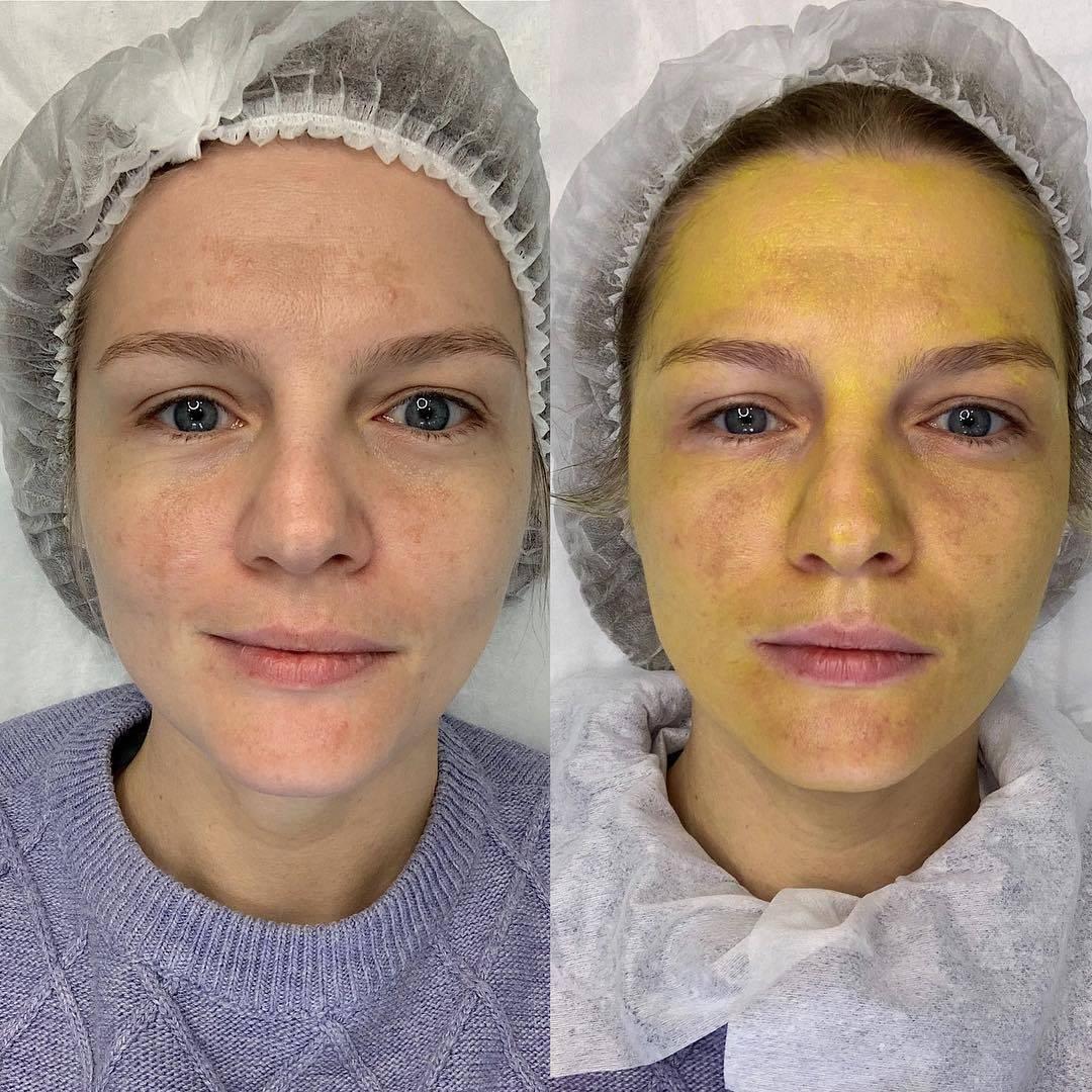 Желтый (ретиноевый) пилинг, идеальное лицо без боли и осложнений