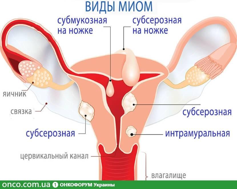 Проявление и способы лечения узловой миомы матки