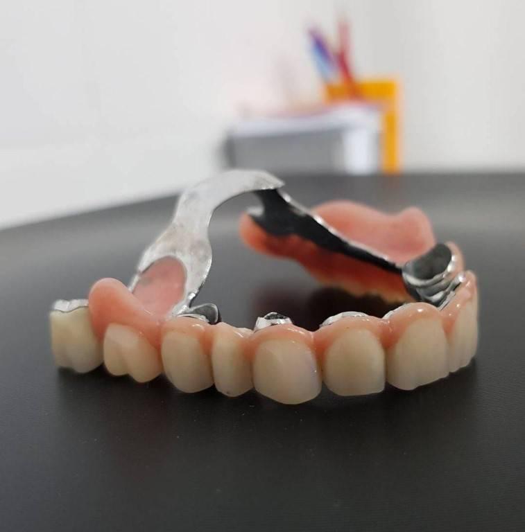 Какие зубные протезы лучше поставить