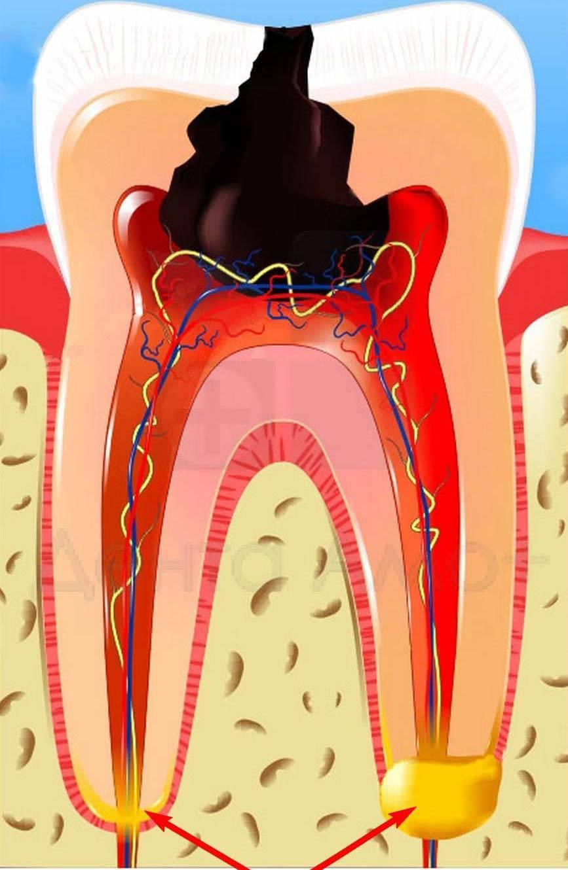 Хронический фиброзный пульпит — какие жалобы у пациентов и как происходит лечение