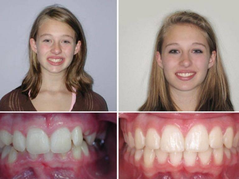 Операция по расширению верхней челюсти до и после