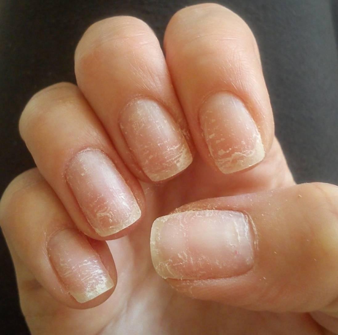 Ногти слоятся и ломаются: причины проблемы и лечение