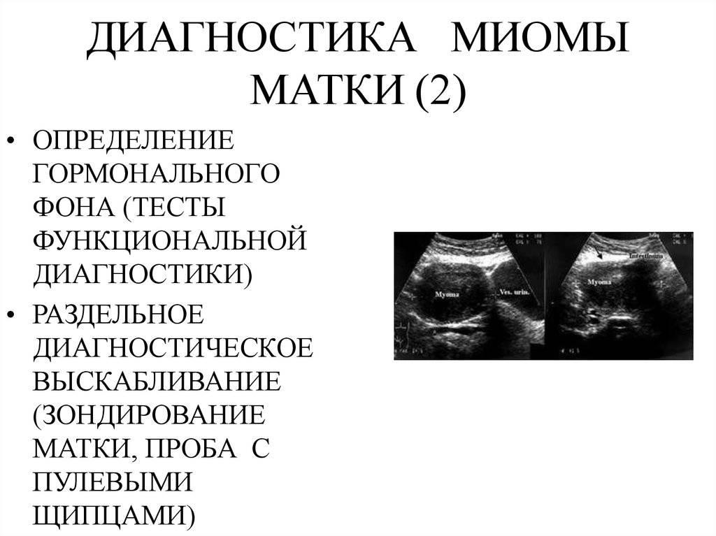 Эффективное лечение миомы матки лекарственными препаратами