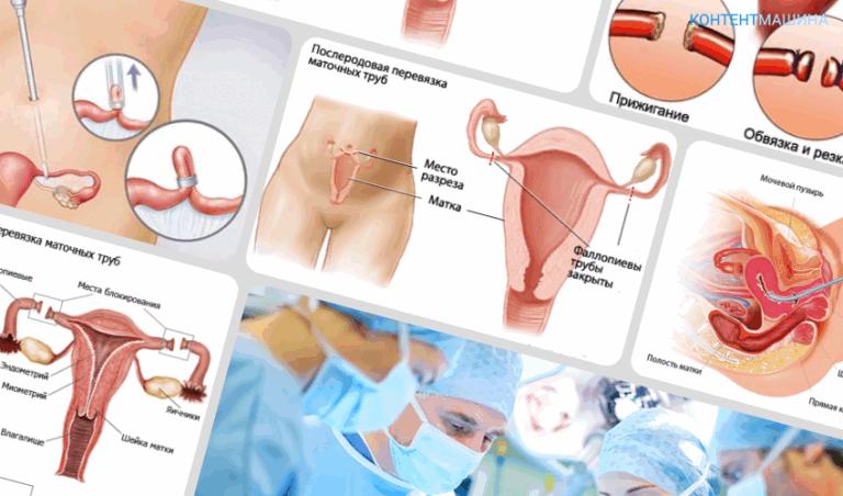 Последствия перевязки маточных труб: плюсы и минусы процедуры