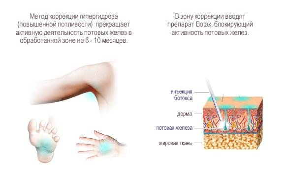 Гипергидроз - лечение повышенной потливости