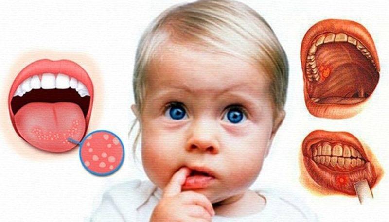 Герпетический стоматит: симптомы и лечение