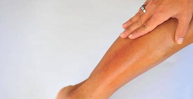 Что делать, если сухая кожа на ногах