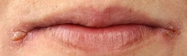 Лечим заеды в уголках рта у детей быстро