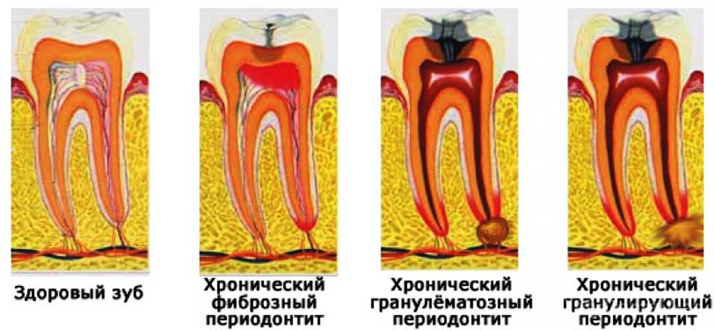 Апикальный периодонтит: симптомы и методы лечения