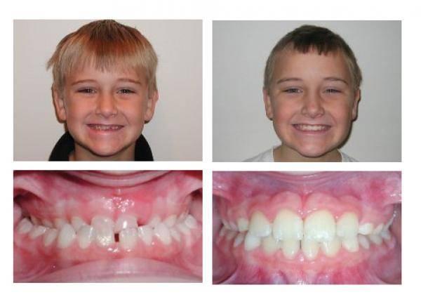 Перед брекетами: что нужно для начала ортодонтического лечения