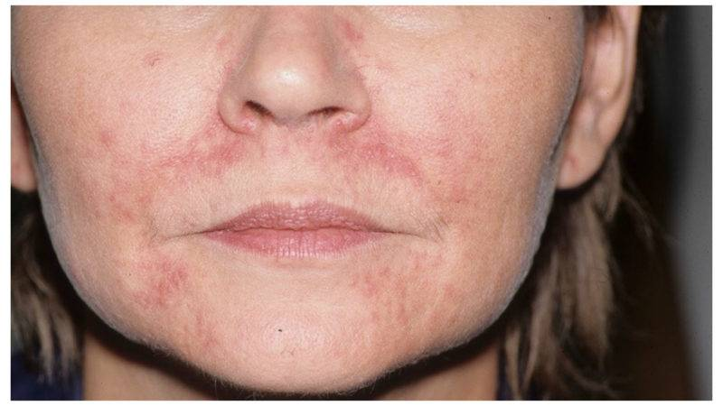 Глава 20. патология сосудов кожи