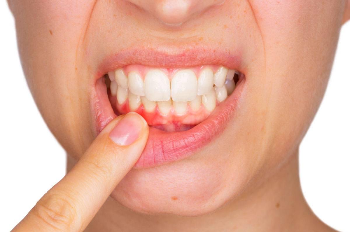 8 причин отпечатков зубов на языке по бокам