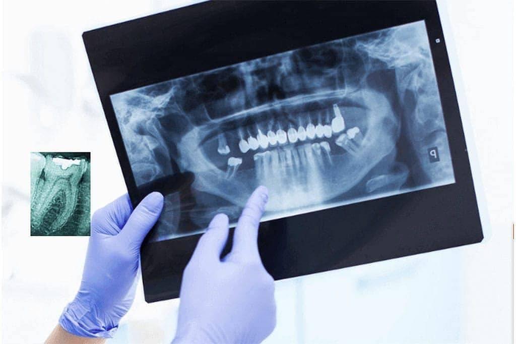 Возможности применения компьютерной томографии в стоматологии