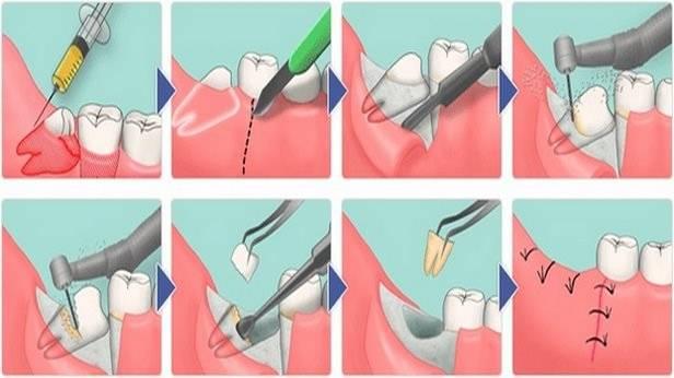 Как избавиться от сильной зубной боли в домашних условиях, в каких случаях стоит вызвать дежурного врача?