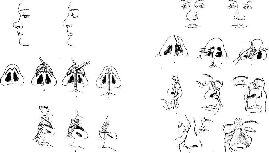 Как делается репозиция костей носа после перелома