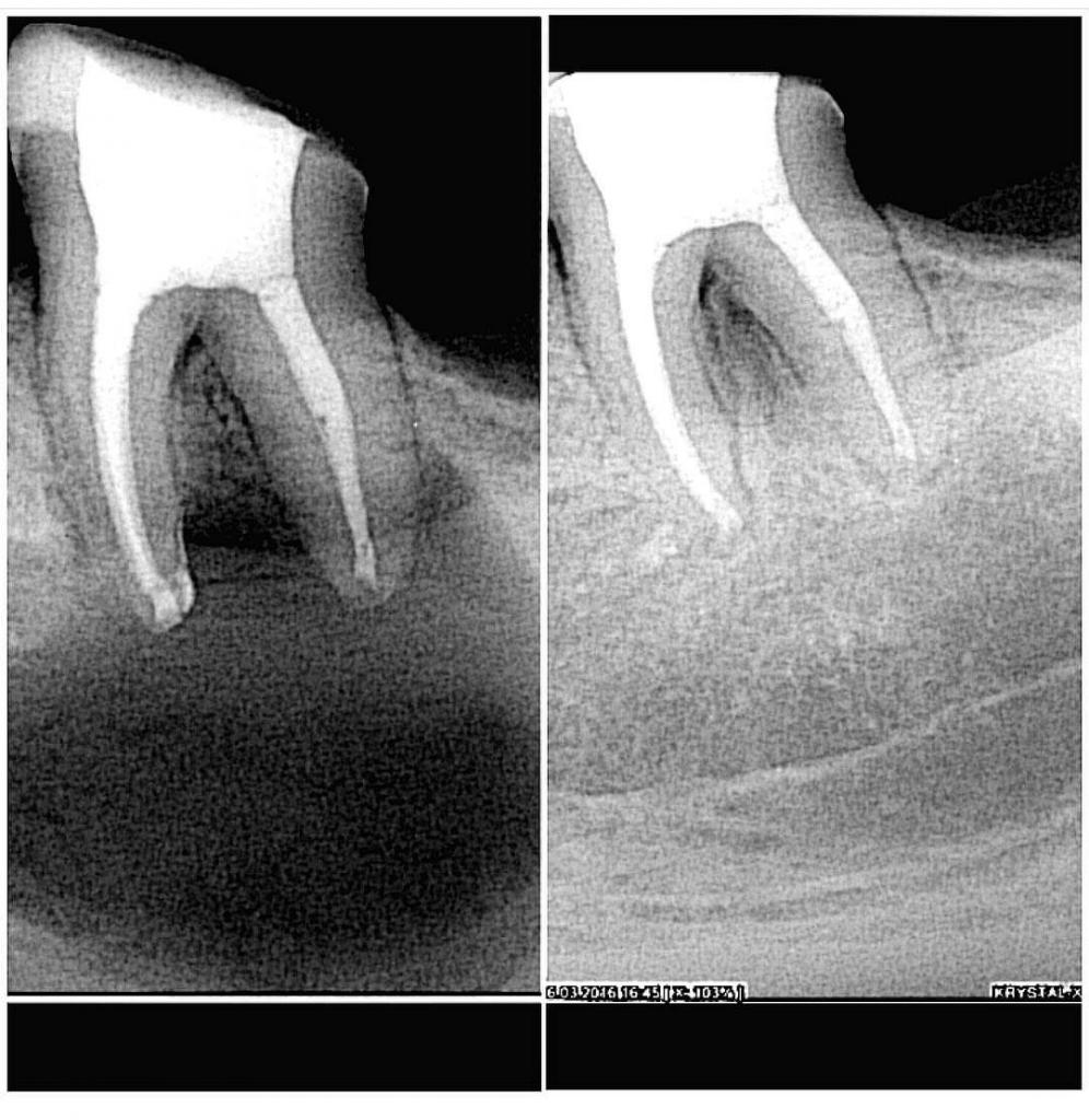 Опасность фолликулярной кисты зуба