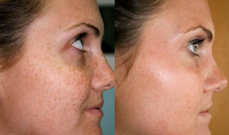 Бадяга от пигментных пятен на лице – рецепт маски с перекисью водорода, свойства и инструкцию по применению