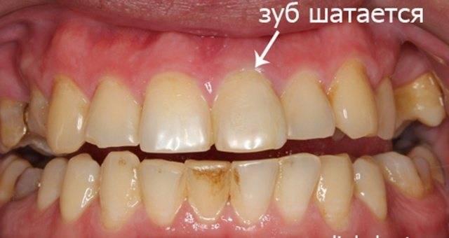 Что делать, если шатается коренной зуб и как его укрепить?