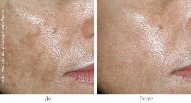 Фраксель лазерная терапия лица: показания к процедуре, фото до и после, цены