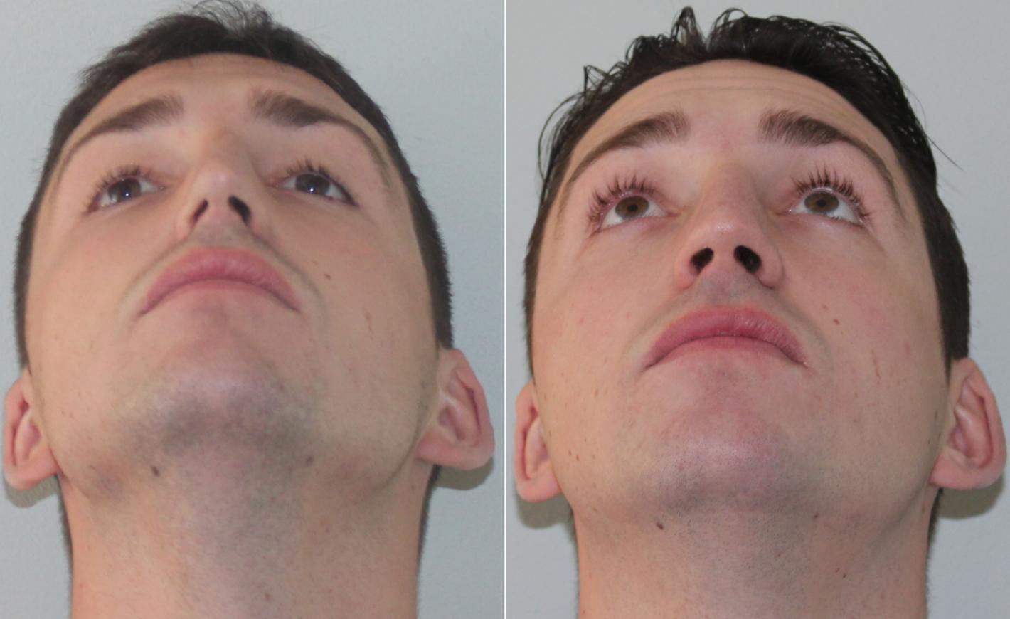 Восстановление после септопластики, послеоперационный период и реабилитация после септопластики носа