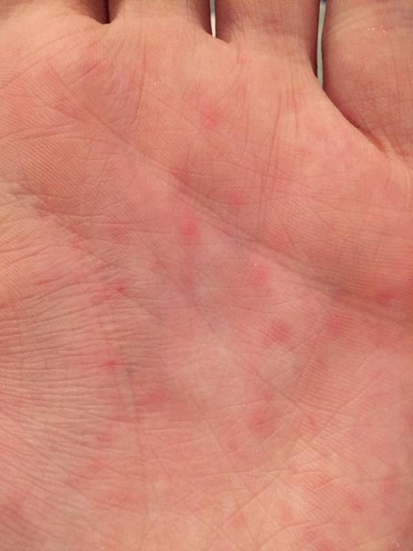 Красные точки на коже — причины появления, методы диагностики и советы как избавиться от точек (105 фото)
