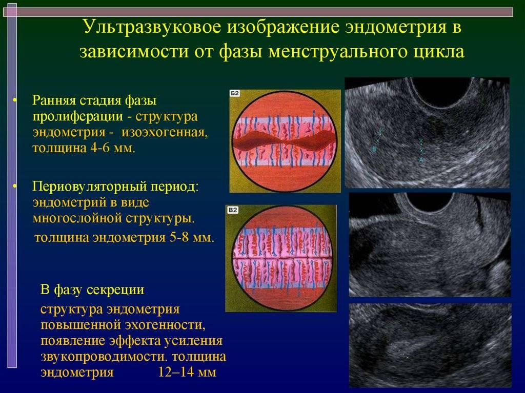 Эндометрий соответствует ранней стадии фазы секреции. лечение гиперплазии эндометрия в менопаузе