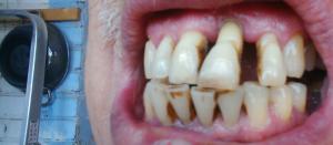 Что делать, если у ребенка или подростка шатается коренной зуб: можно ли его укрепить?