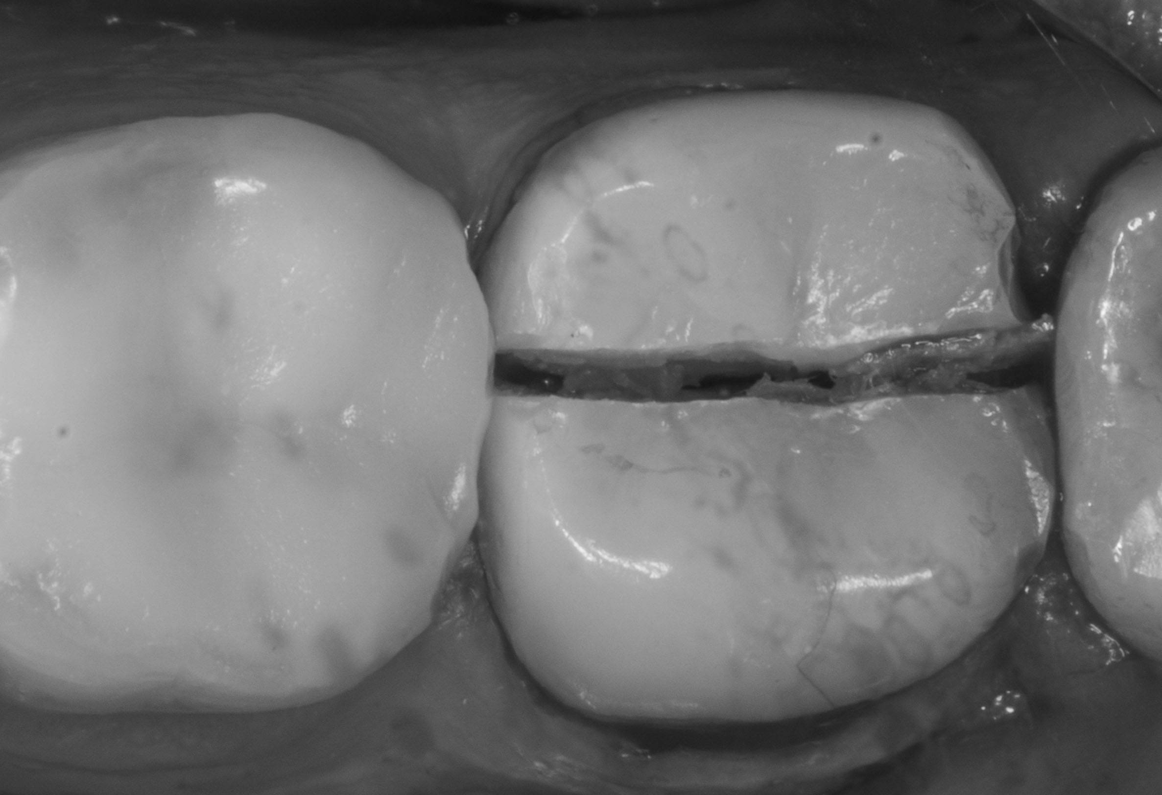 Почему после удаления нерва болит зуб при нажатии: причины неприятных ощущений после пломбирования и чистки каналов