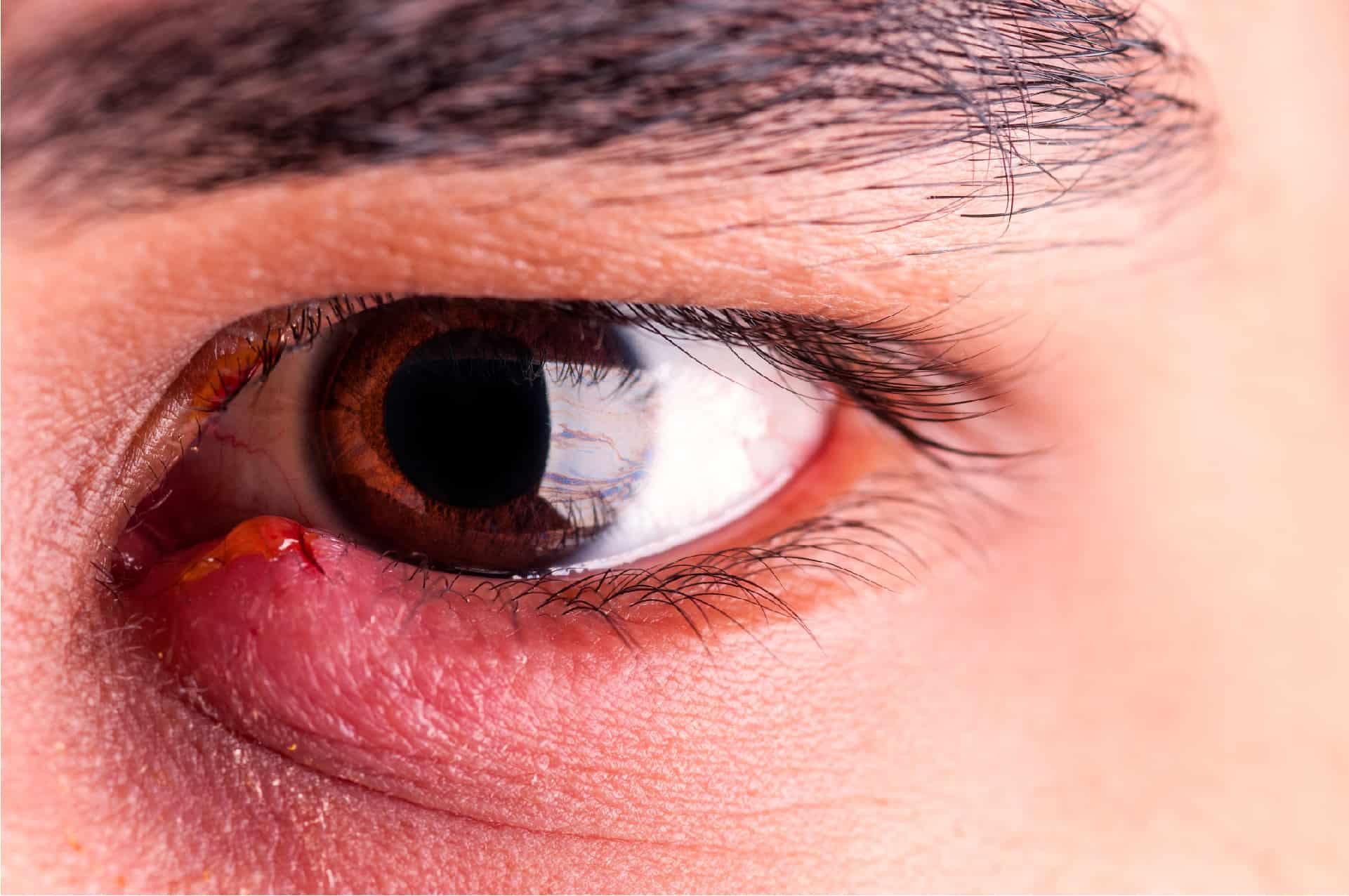 Воспаление века – особенности заболевания и рекомендации по лечению