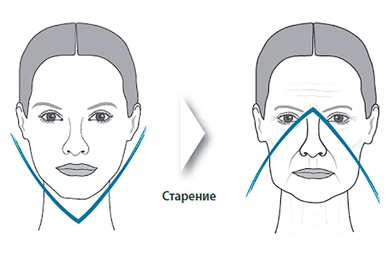 Как убрать брыли на лице в домашних условиях упражнения. как избавиться от брылей на лице в домашних условиях