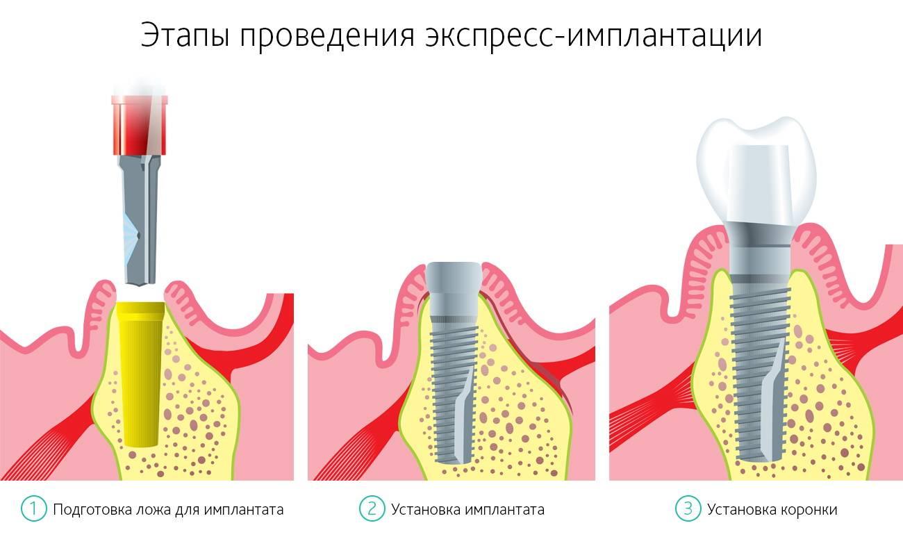 Как ставят имплант зуба