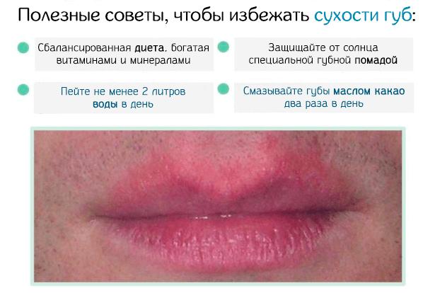 Шелушатся губы: что делать и чем быстро устранить сухость и красноту