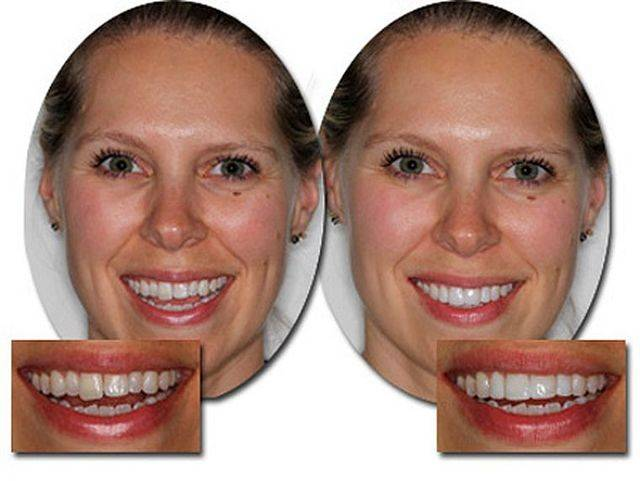 Что такое подпиливание зубов и зачем проводят данную процедуру?