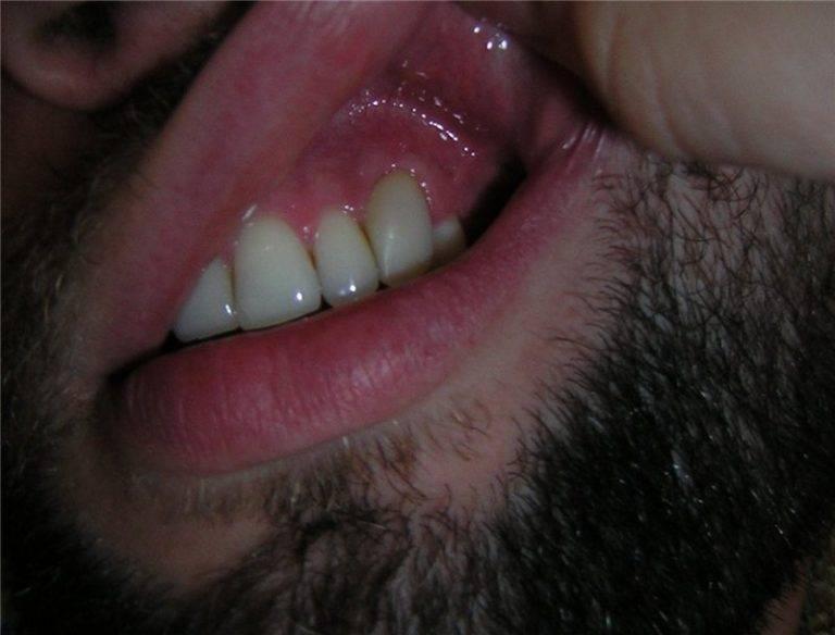 Как быстро снять опухоль при зубном флюсе в домашних условиях?