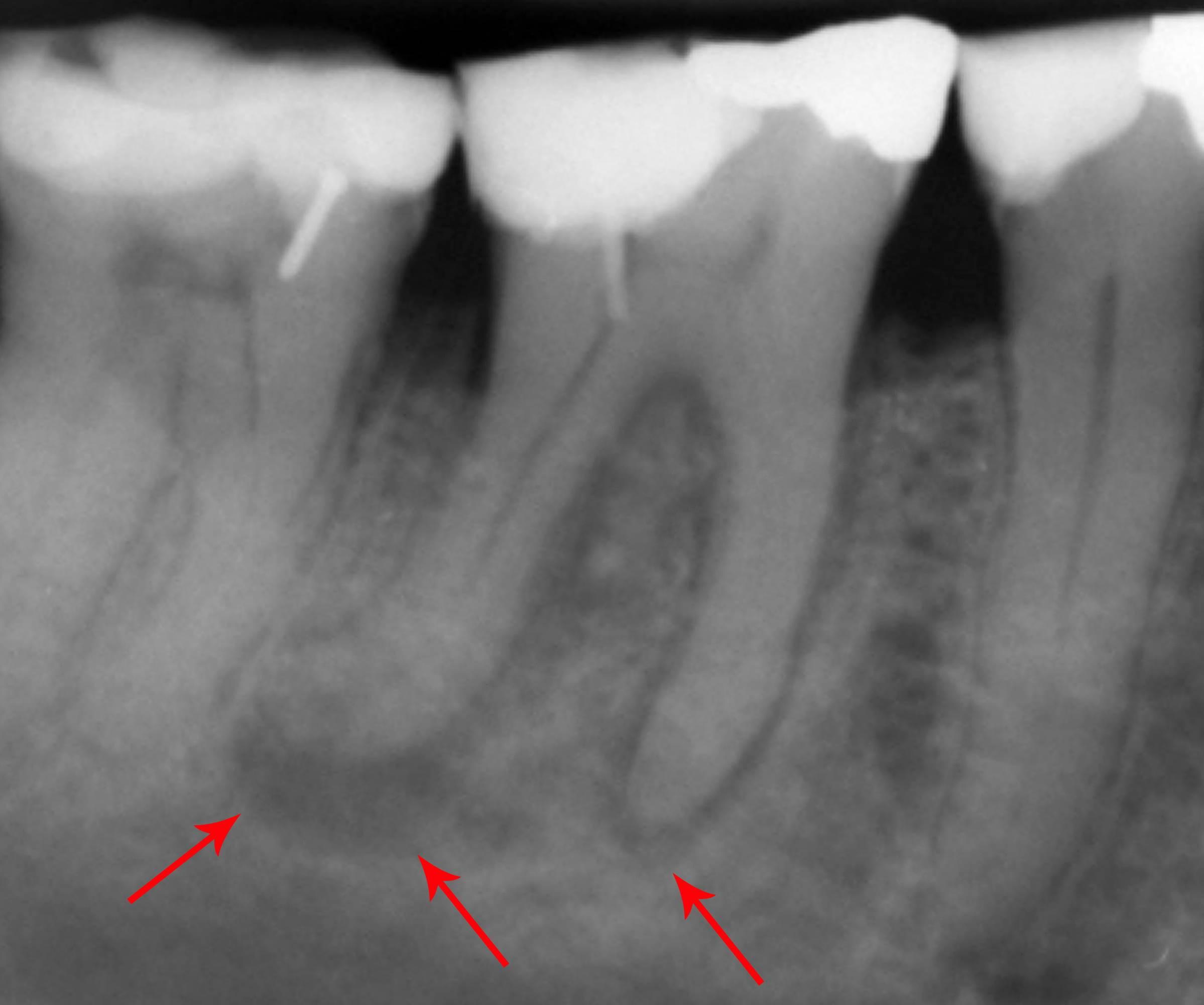 Киста зуба: причины, симптомы, консервативное и домашнее лечение