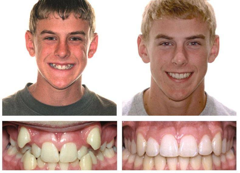 Процедура подпиливания передних зубов и клыков у детей и взрослых: фото до и после