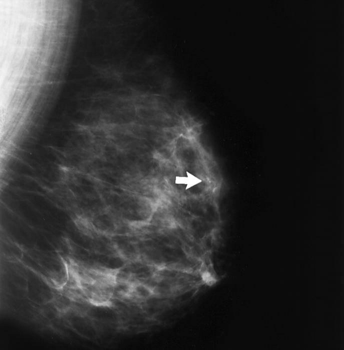 Кальцинаты в молочной железе. это признак рака или нет