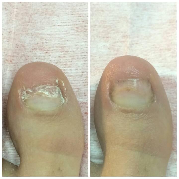 Восстановительный период после операции по удалению вросшего ногтя
