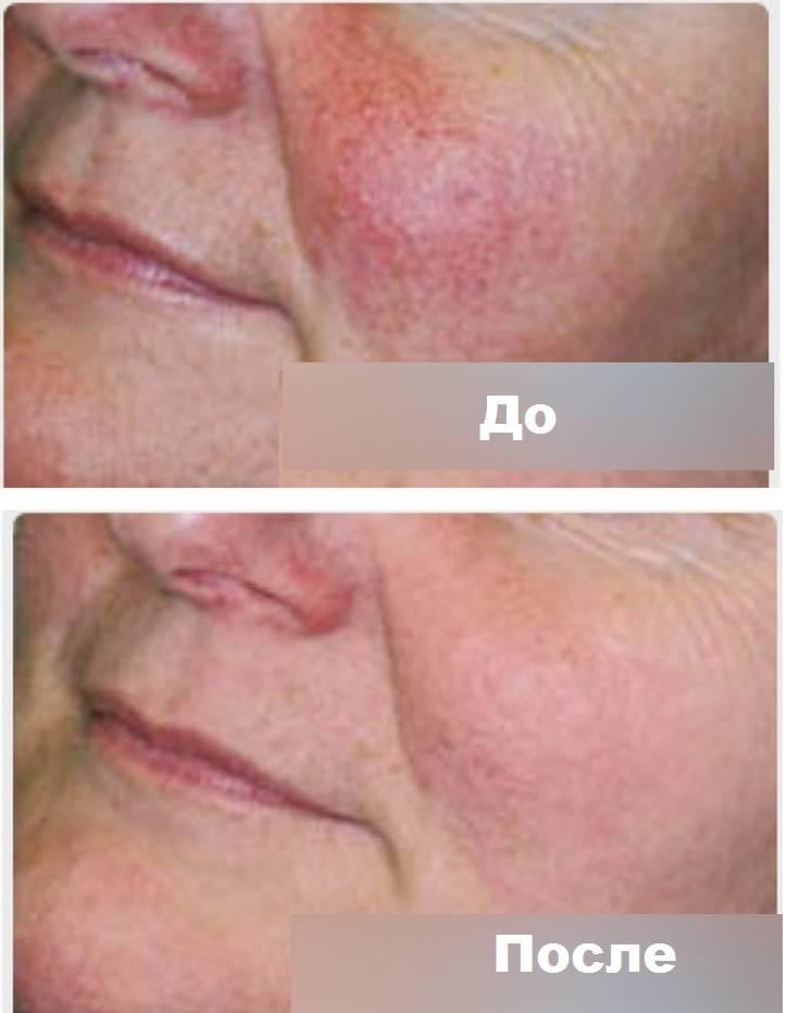 Купероз на лице — лечить, нельзя помиловать: ищем причины, назначаем лечение