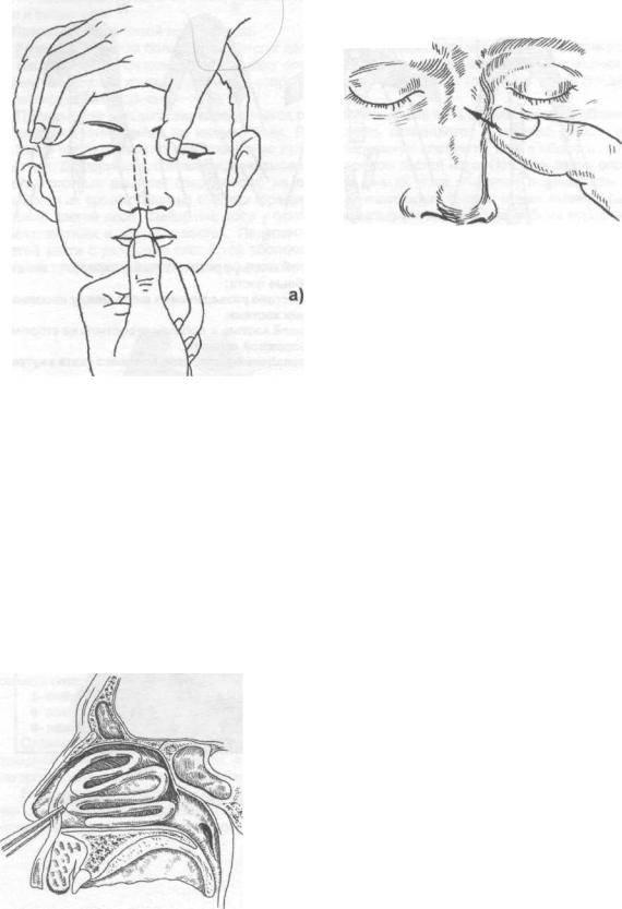 Репозиция костей носа после травмы