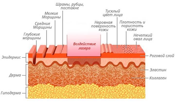 Лечение атрофических рубцов