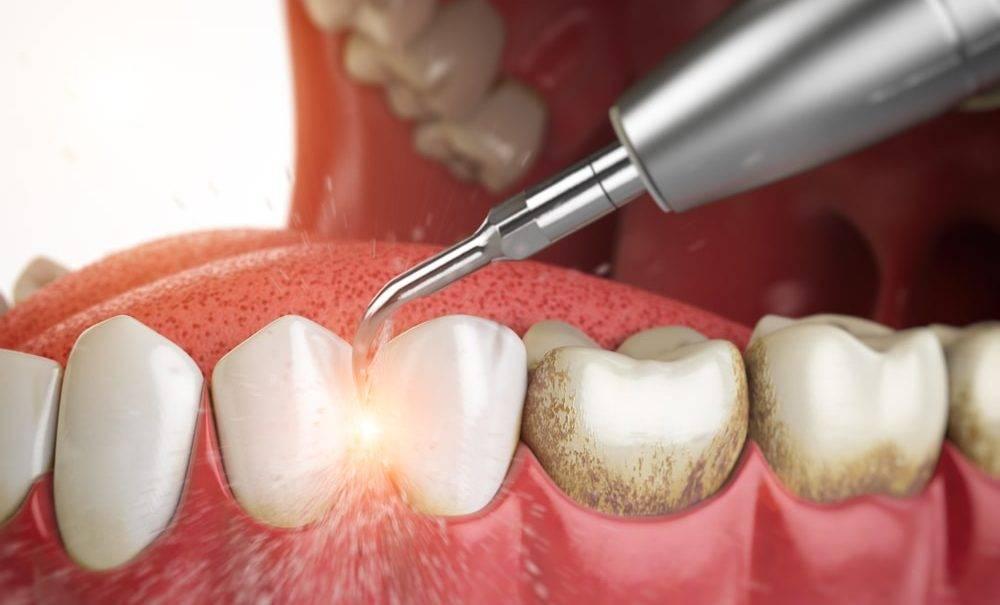 Как удалить зубной камень самостоятельно