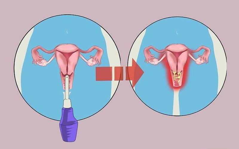 Обезболивающее при менструационных болях. названия таблеток и уколов.