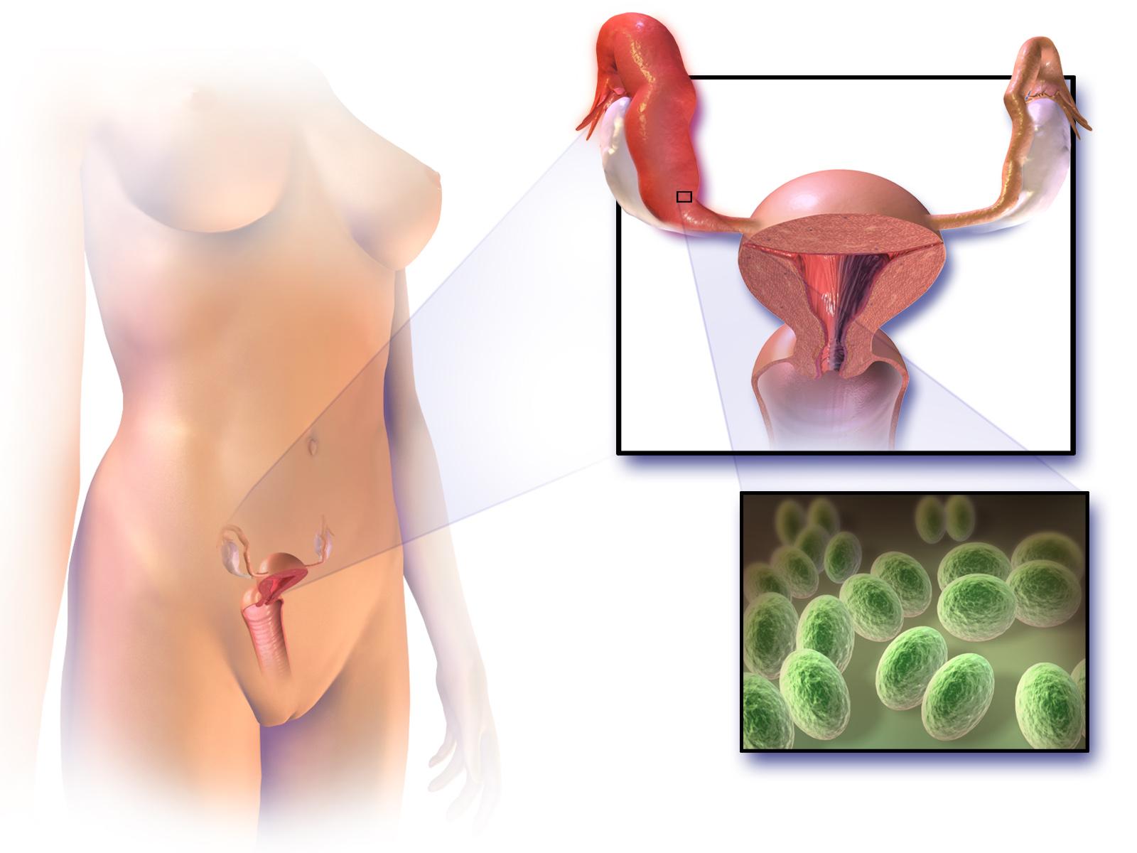 Можно ли заниматся сексом при кисте яичника