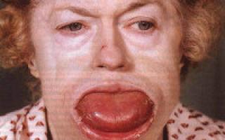 Как проявляется заболевание макроглоссия. макроглоссия (увеличенный язык): этиология и методы терапии