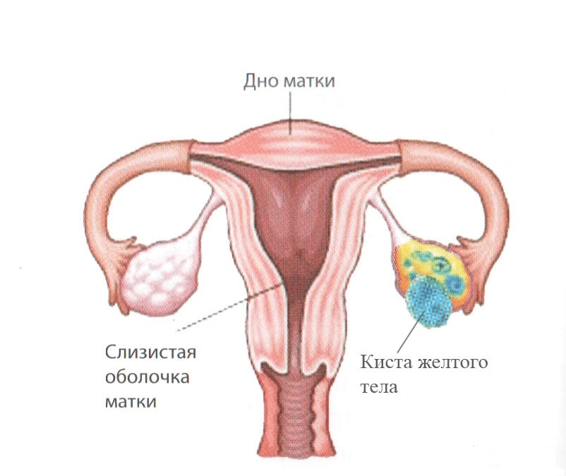 Особенности ретенционного образования левого яичника